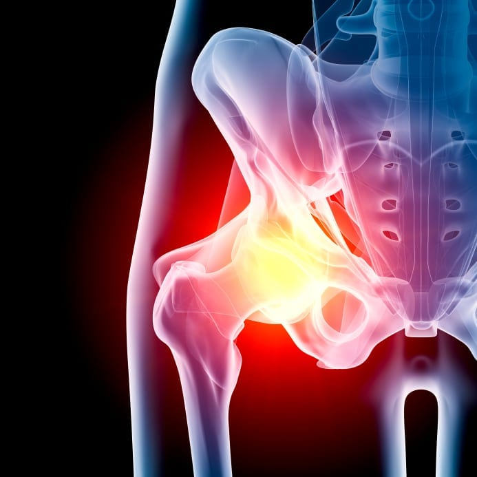 Hip Skeleton Stock Photo
