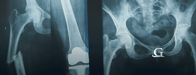 Which Hip And Knee Replacements Are Known To Fail?
