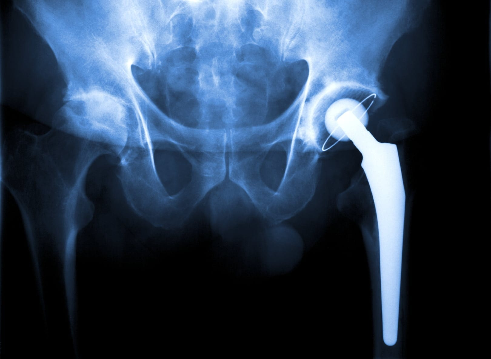 Wright Hip replacement - Goldwater Law Firm
