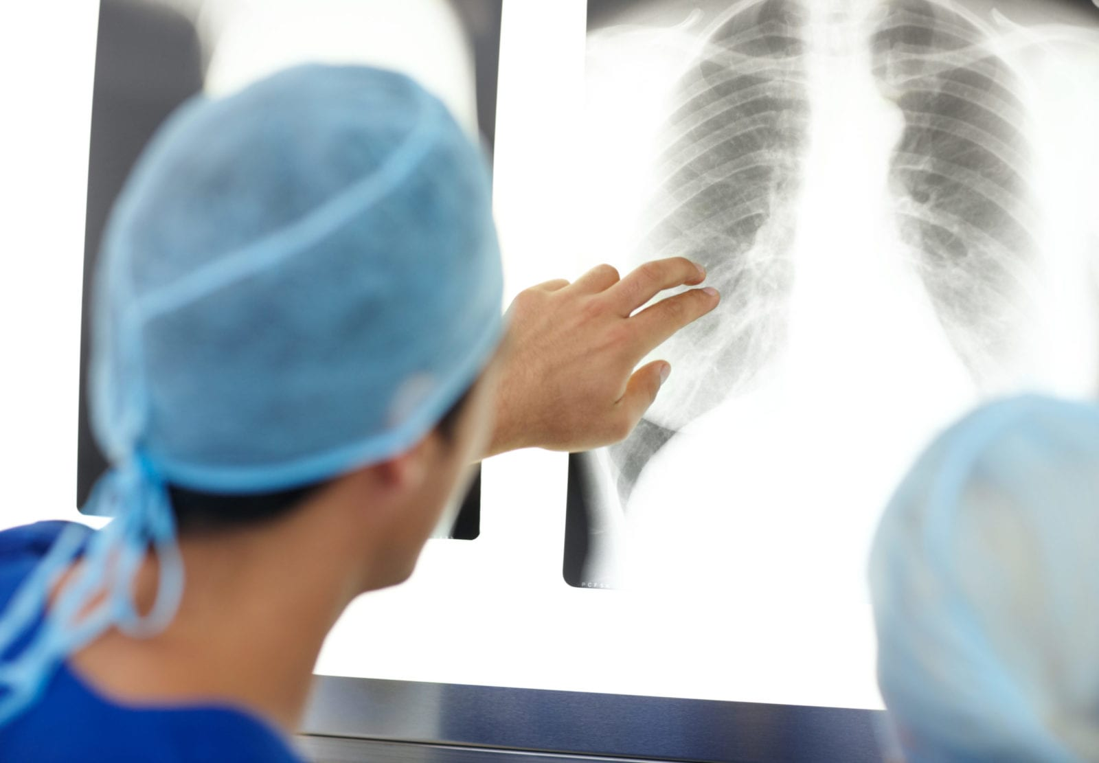doctor-looking-closely-at-xray-of-lungs