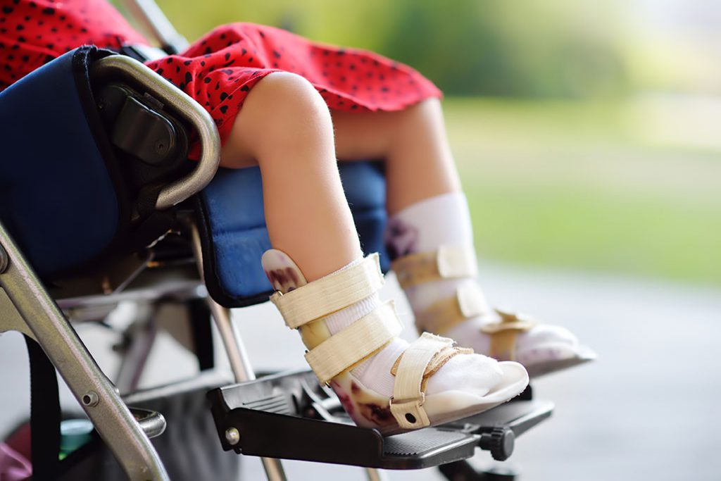 child with cerebral palsy after suffering a birth injury in Arizona