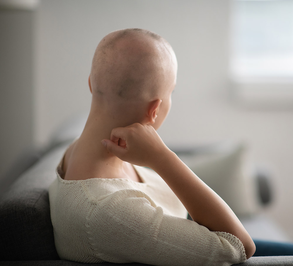 Woman with alopecia an Elmiron® side effect